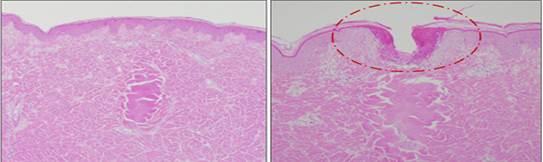 Effetti nel derma con uso di elettrodi isolati e micro aghi non isolati